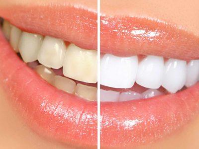 Blanchissement de dents