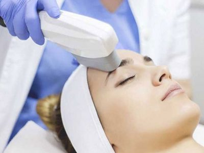 IPL and Laser Treatments